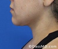 Beverly Hills Chin Liposuction Results - After - Case 5-1