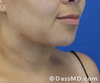 Beverly Hills Chin Liposuction Results - After - Case 6-2