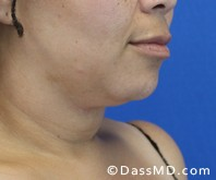 Beverly Hills Chin Liposuction Results - Before - Case 6-2