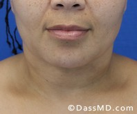 Beverly Hills Chin Liposuction Results - After - Case 6-3