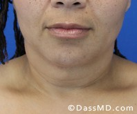 Beverly Hills Chin Liposuction Results - Before - Case 6-3