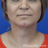 Beverly Hills Chin Liposuction Results - After case 9-1