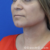Beverly Hills Chin Liposuction Results - After case 9-2