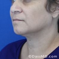 Beverly Hills Chin Liposuction Results - Before case 9-2