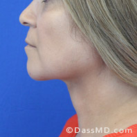 Beverly Hills Chin Liposuction Results - After case 9-3