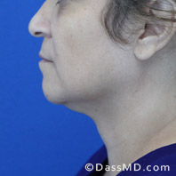 Beverly Hills Chin Liposuction Results - Before case 9-3