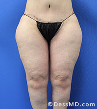Dr Dennis Dass, MD  Thigh Lift After view 1