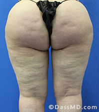 Dr Dennis Dass, MD Thigh Lift After view 3