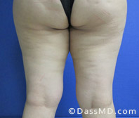 Inner Thigh Liposuction Before and After Photos Beverly Hills -  Before 6 - 2