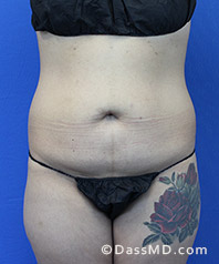Beverly Hills Tummy Tuck Results - Tummy Tuck (Abdominoplasty) View Before 28 - 1