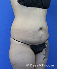 Beverly Hills Tummy Tuck Results - Tummy Tuck (Abdominoplasty) View Before 28 - 2