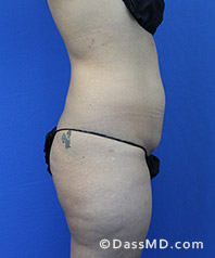 Beverly Hills Tummy Tuck Results - Tummy Tuck (Abdominoplasty) View Before 28 - 3