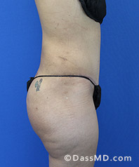 Beverly Hills Tummy Tuck Results - Tummy Tuck (Abdominoplasty) View After 28 - 3