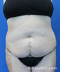 Beverly Hills Tummy Tuck Results - Tummy Tuck (Abdominoplasty) View Before 29 - 1