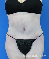 Beverly Hills Tummy Tuck Results - Tummy Tuck (Abdominoplasty) View After 29 - 1