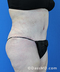 Beverly Hills Tummy Tuck Results - Tummy Tuck (Abdominoplasty) View After 29 - 2