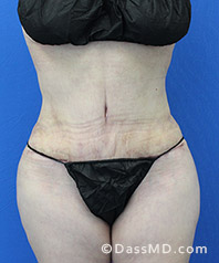 Beverly Hills Tummy Tuck Results - Tummy Tuck (Abdominoplasty) View After 30 - 1
