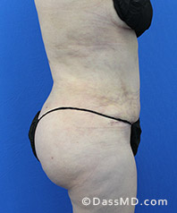 Beverly Hills Tummy Tuck Results - Tummy Tuck (Abdominoplasty) View After 30 - 3
