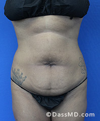 Beverly Hills Tummy Tuck Results - Tummy Tuck (Abdominoplasty) View Before 31 - 1