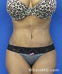 Beverly Hills Tummy Tuck Results - Tummy Tuck (Abdominoplasty) View After 31 - 1