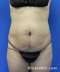 Beverly Hills Tummy Tuck Results - Tummy Tuck (Abdominoplasty) View Before 32 - 1