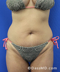 Beverly Hills Tummy Tuck Results - Before View 33-1