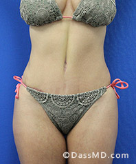Beverly Hills Tummy Tuck Results - After View 33-1