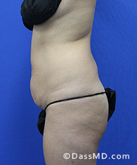 Beverly Hills Tummy Tuck Results - - Before View 33-3