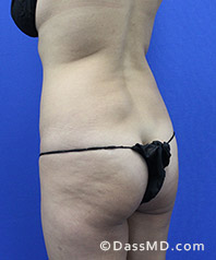 Beverly Hills Tummy Tuck Results - Before View 33-4