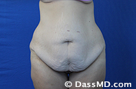 Beverly Hills Tummy Tuck Results - Before View 13-1