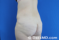 Beverly Hills Tummy Tuck Results - After View 13-4