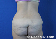 Beverly Hills Tummy Tuck Results - Before View 13-5