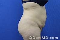 Beverly Hills Tummy Tuck Results - - Before View 16-3