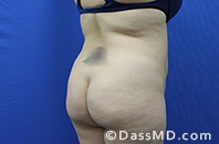 Beverly Hills Tummy Tuck Results - Before View 16-4