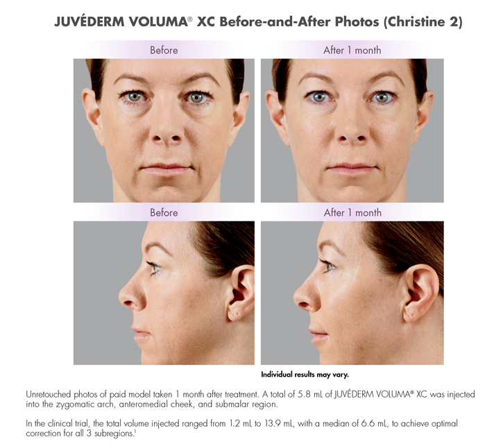 Dr Dennis Dass, MD Juvederm® Voluma Beverly Hills Before and After