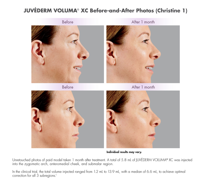 Dr Dennis Dass, MD Juvederm® Voluma Beverly Hills Before and After 2