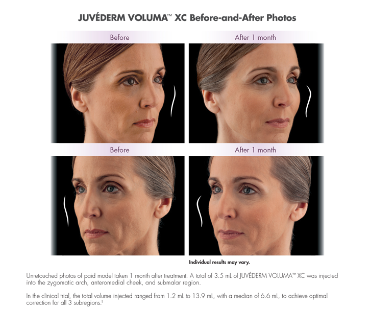 Dr Dennis Dass, MD Juvederm® Voluma Beverly Hills Before and After 3