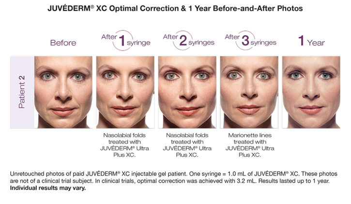 Dr Dennis Dass, MD Juvederm® Ultra Plus Beverly Hills Before and After