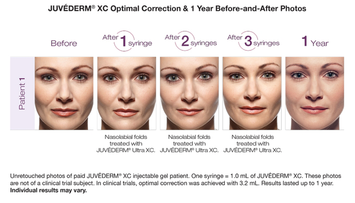 Dr Dennis Dass, MD Juvederm® Ultra Plus Beverly Hills Before and After 2