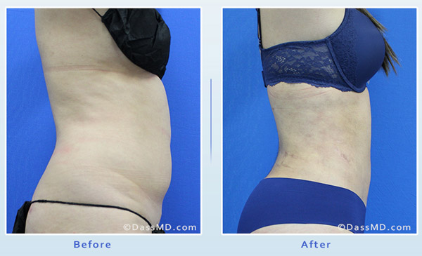 Liposuction Beverly Hills - Liposuction by Body Area