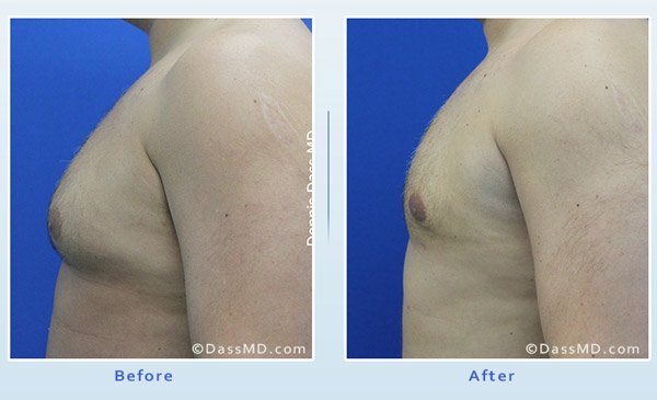 Liposuction Beverly Hills - Chest Liposuction