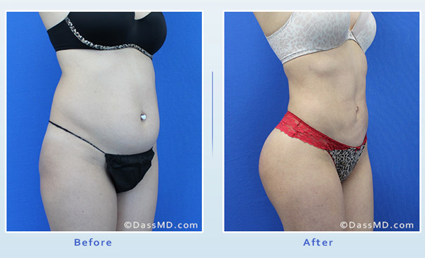 Liposuction Beverly Hills - Liposuction Fat transfer to Buttock