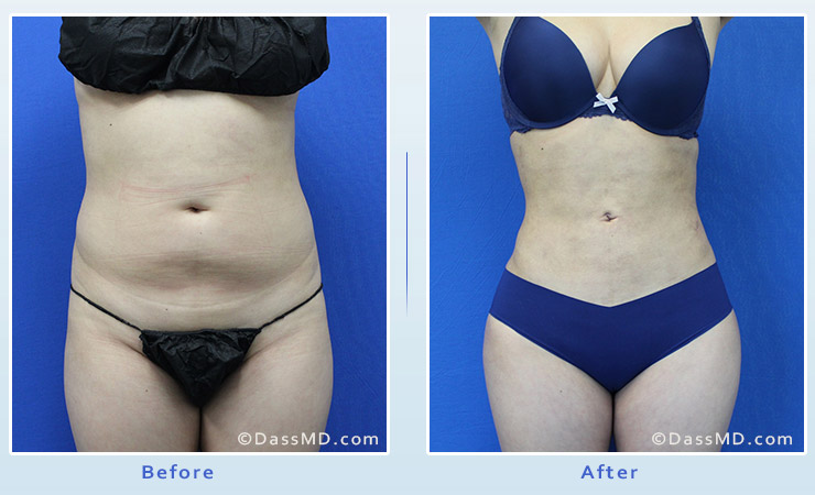 Liposuction Beverly Hills - Flank Liposuction
