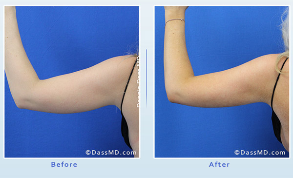 Liposuction Beverly Hills - Arm Liposuction