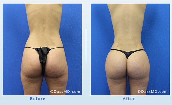 Liposuction Beverly Hills - Thigh Liposuction