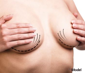 Dr Dass describes Natrelle 410 The Highly Cohesive, Anatomically Shaped, Silicone Breast Implant