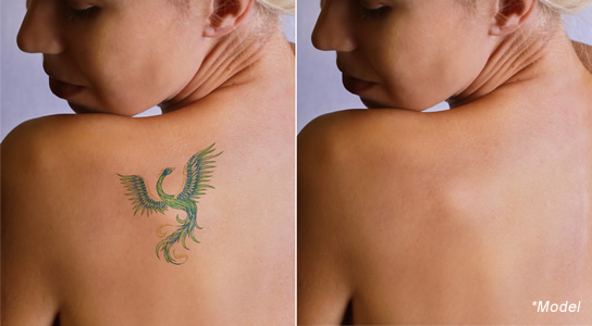 Dr Dass describes picosure tattoo removal