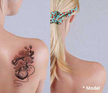 PicoSure Tattoo Removal Reviews Beverly Hills - Plastic Surgeon
