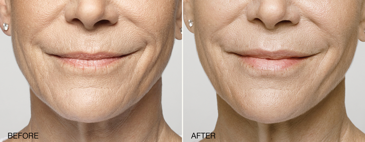 Dr Dennis Dass, MD Restylane® Silk Before and After