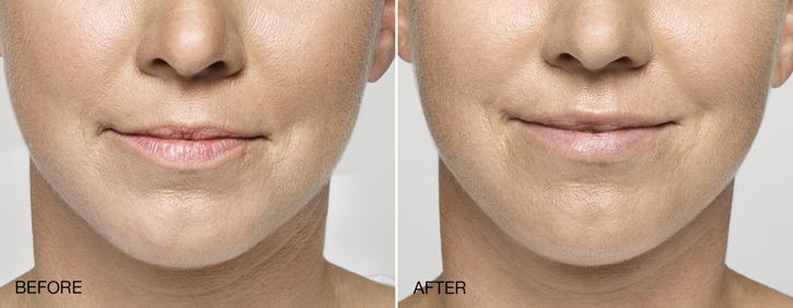 Dr Dennis Dass, MD Restylane® Silk Before and After 2